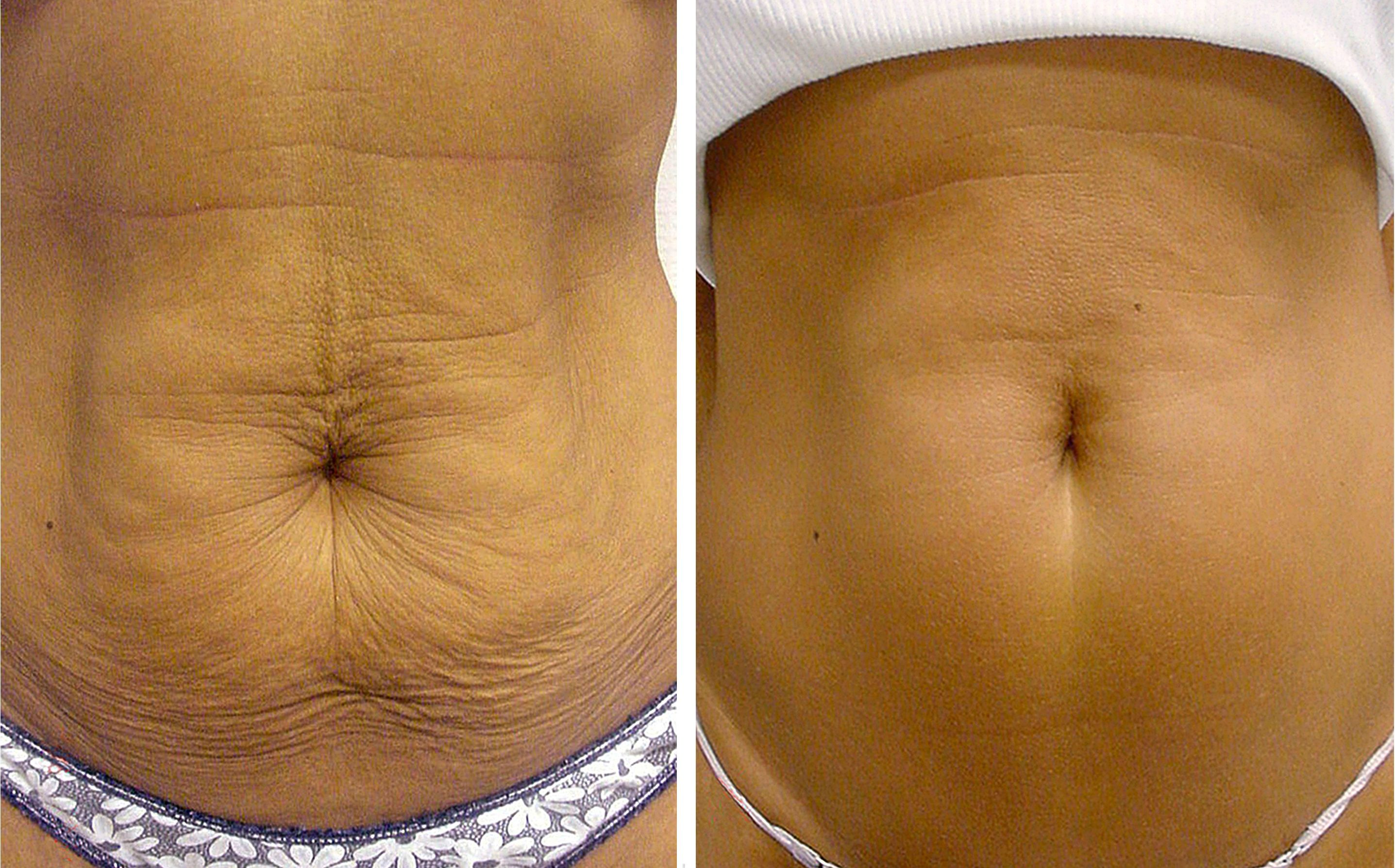 skin tightening endermologie